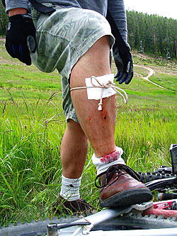 improvised wilderness first aid bandage